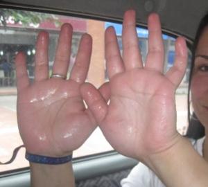 manos-sudorosas